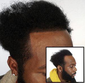 Dermopigmentation avant après cheveux afro