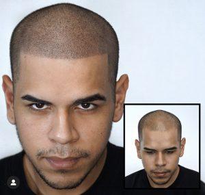Dermopigmentation avant après coupe rasée