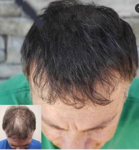 Dermopigmentation avant après homme européen
