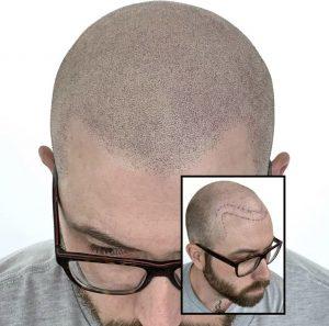 Dermopigmentation avant après